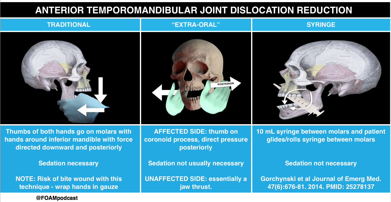 TMJ dislocation reduction