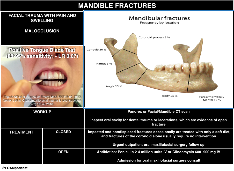 mandible fracture
