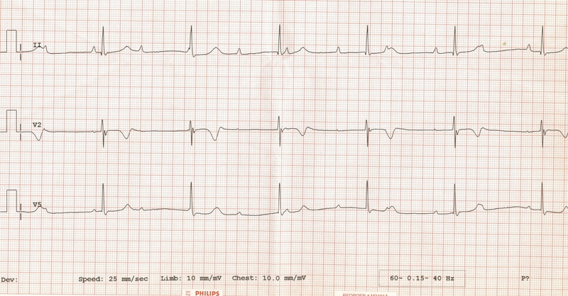 content_ecg_-3rd_degree_heart_block