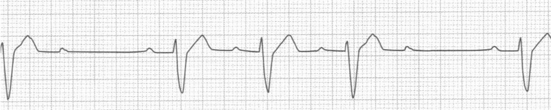 content_ecg_-_second_degree_heart_block_type_ii